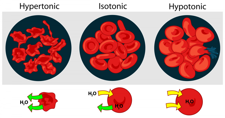Hypertonic, Isotonic, and Hypotonic