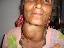 A woman with a large goiter. Making her neck appear very swollen.