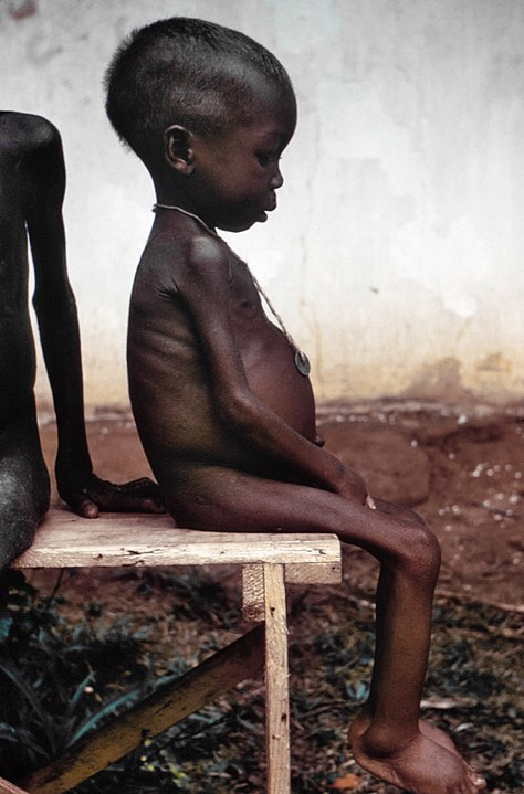 Malnourished African child with kwashkiorkor.