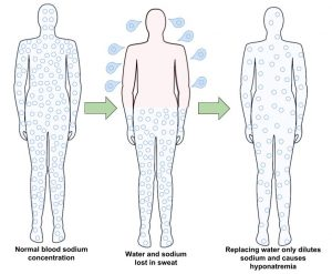 3 human outlines with arrows from 1 to 2 and 2 to 3. Label for 1: Normal blood sodium levels. Label for 2: water and sodium lost in sweat. Label 3: replacing water only dilutes sodium, causes hyponatremia.