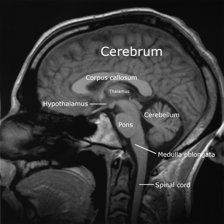 M.R.I scan of brain, labelled