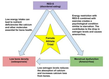 Box labeled RED-S disordered eating is linked by arrows to box labeled low bone density and box labeled menstrual dysfunction which are also linked by an arrow.