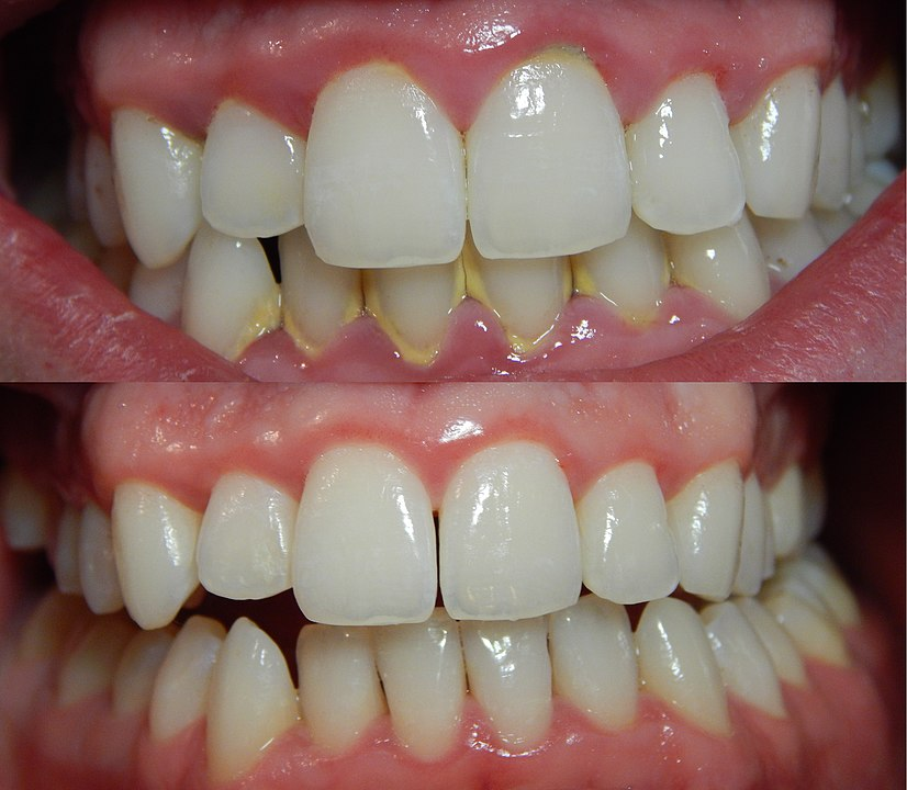 Gingivitis before (top) and after (bottom) a thorough mechanical debridement of the teeth.