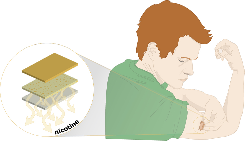 Nicotine Patch - therapy which slows the delivery of nicotine to the brain
